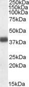 NBP1-06978 - Apolipoprotein L2 (Apo L2)