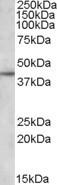 NBP1-06979 - Apolipoprotein L3 (Apo L3)