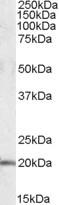 NBP1-06996 - U2AF1L4 / U2AF1L3