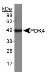 NBP1-07047 - PDK4