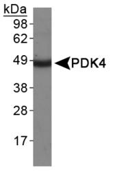 NBP1-07049 - PDK4