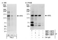 NBP1-18875 - ABL2
