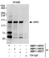 NBP1-18876 - ABL2