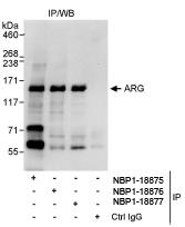 NBP1-18877 - ABL2