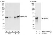NBP1-18886 - ABCB9