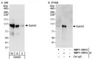 NBP1-18913 - EPHA2 / ECK