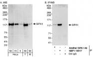 NBP1-18917 - SIPA1 / SPA1