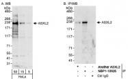 NBP1-18926 - ASXL2