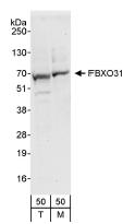 NBP1-19088 - FBXO31