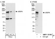 NBP1-19107 - RAD54L2 / ARIP4