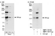 NBP1-19117 - Cyclophilin G / PPIG