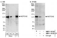 NBP1-19125 - NOTCH2