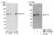 NBP1-19147 - NFYC