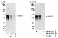NBP1-19159 - ASAP1 / DDEF1