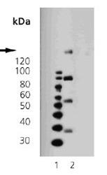 NBP1-19191 - CD140b / PDGFRB
