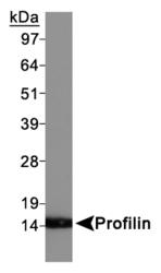 NBP1-19344 - Profilin-1 / PFN1