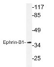 NBP1-19387 - EPHB1