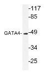 NBP1-19392 - GATA4