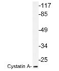 NBP1-19433 - Cystatin-A