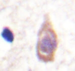 NBP1-19434 - TGFBR3