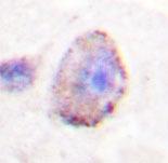 NBP1-19442 - PLCB3