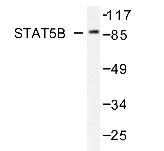 NBP1-19445 - STAT5B