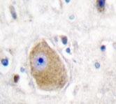 NBP1-19446 - HSD17B10 / ERAB
