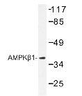 NBP1-19502 - AMPK beta-1 chain / AMPKb