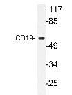 NBP1-19503 - CD19