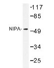 NBP1-19525 - ZC3HC1