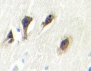 NBP1-19542 - MAPK10