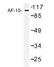 NBP1-19544 - MLLT10 / AF10