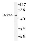 NBP1-19550 - ASC1 / TRIP4