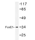 NBP1-19553 - FOXE1 / FKHL15