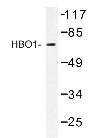 NBP1-19557 - MYST2