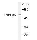 NBP1-19568 - GTF2H1 / BTF2