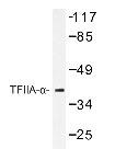 NBP1-19577 - GTF2A2 / TF2A2
