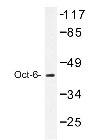NBP1-19586 - POU3F1 / OCT6