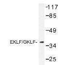 NBP1-19593 - Krueppel-like factor 1 (KLF1)