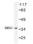 NBP1-19599 - NR1I3