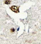 NBP1-19606 - CUGBP1