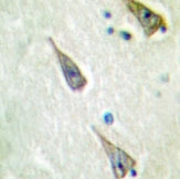 NBP1-19614 - SEMA4A