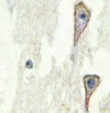 NBP1-19628 - Adenylate cyclase type 1