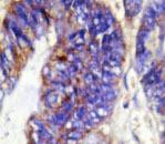 NBP1-19632 - Collagen type IV alpha 2 chain