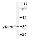 NBP1-19634 - AMPK beta-1 chain / AMPKb