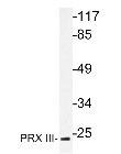 NBP1-19748 - Peroxiredoxin-3 / PRDX3