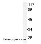 NBP1-19753 - Oxytocin