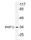 NBP1-19759 - BNIP2