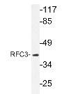 NBP1-19777 - RFC3 / RFC38