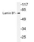NBP1-19804 - Lamin-B1 (LMNB1)